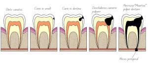 evolutia-cariei-dentare
