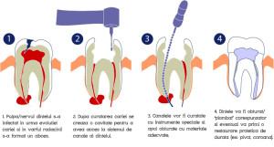 tratament-de-canal02